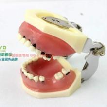 ENOVO正品 口腔牙周病学教学实习示教模型重度牙周病模型分瓣术图片