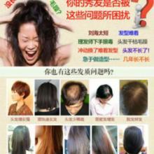 供应脂溢性脱发脂溢性脱发/斑秃中药快速生发剂瑶元堂